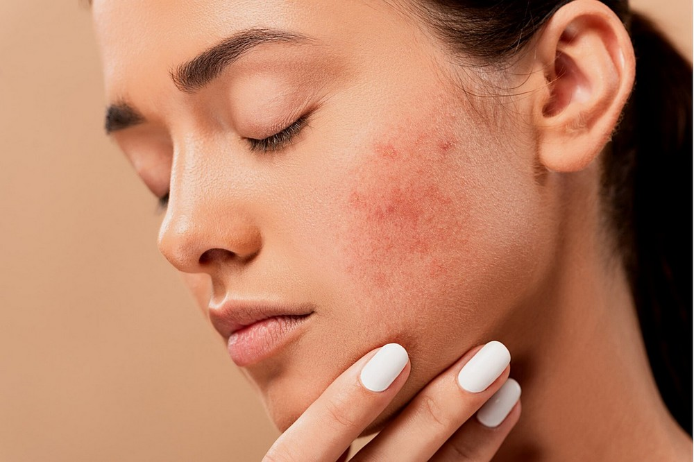 Verzorg je huid zonder gevaar voor irritaties